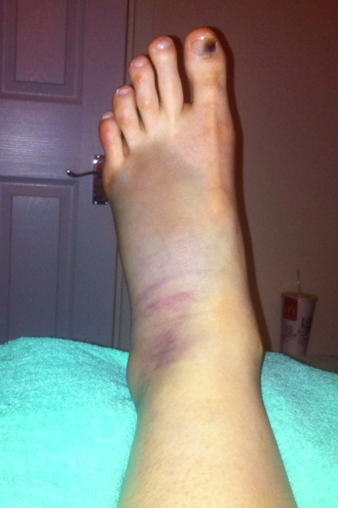 Wankle; Day 1 post-injury
